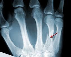 hand fracture emedicinehealth